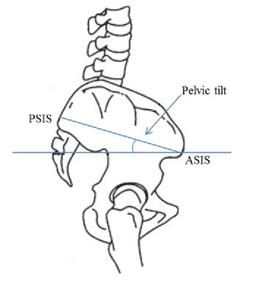 fig-s10-pelvic-tilt-as-measured-in-modern-humans-pelvic-tilt-is-measured-as-an-angle
