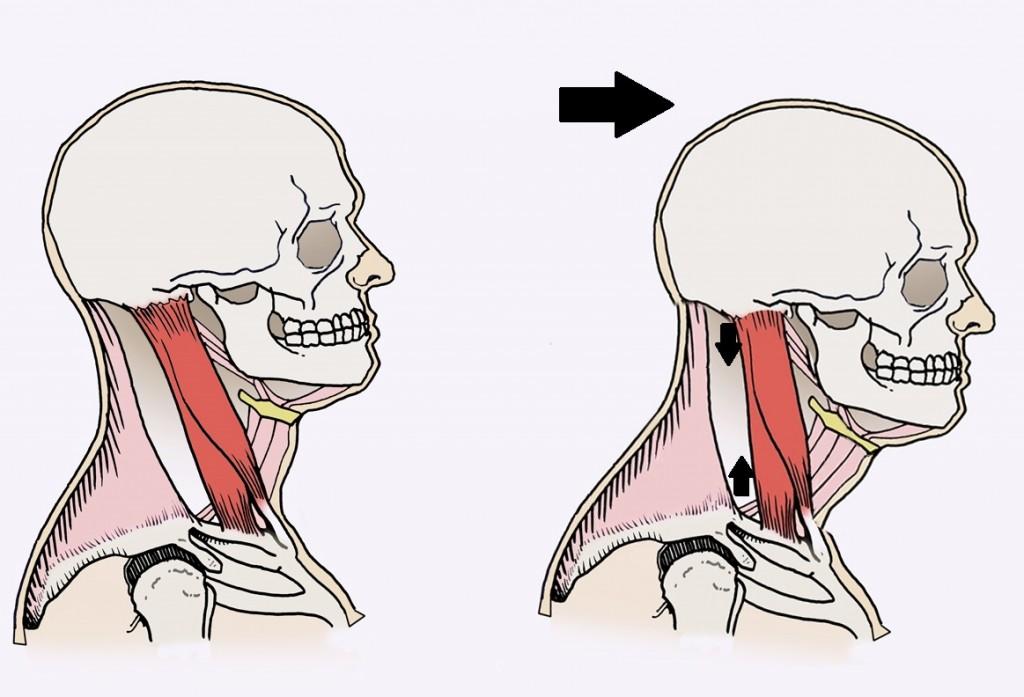 39b.-SCM-Bad-Posture1