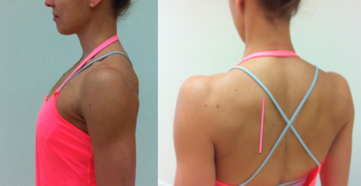 ideal-scapula-position[1]