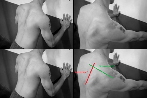 Anterior tipping