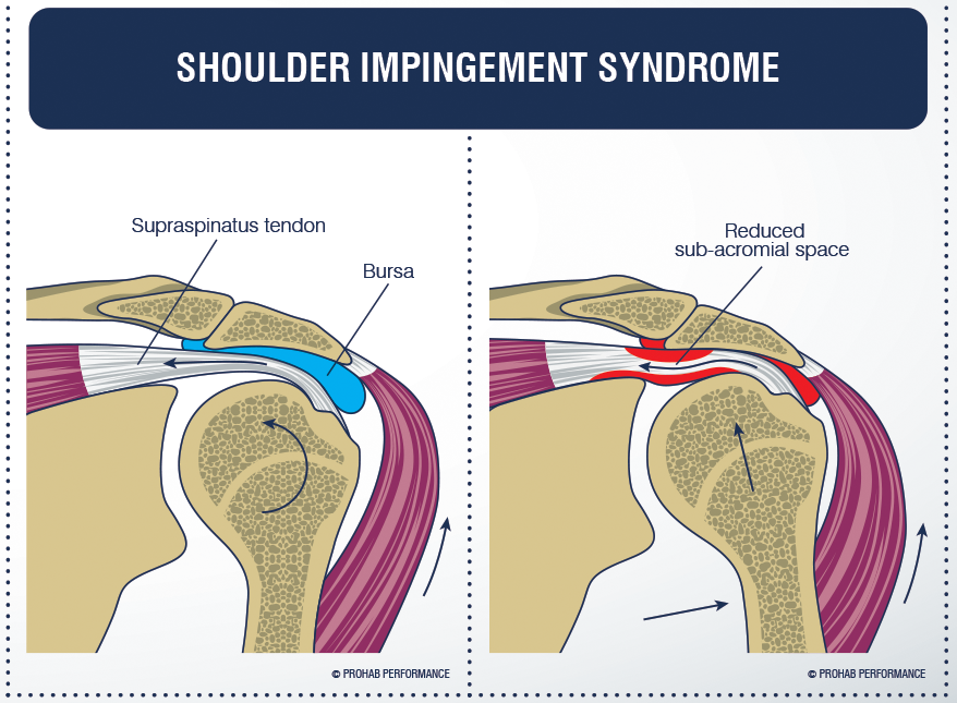 Shoulder-Impingement-Syndrome[1]