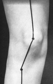 tibial lateral rotasjon