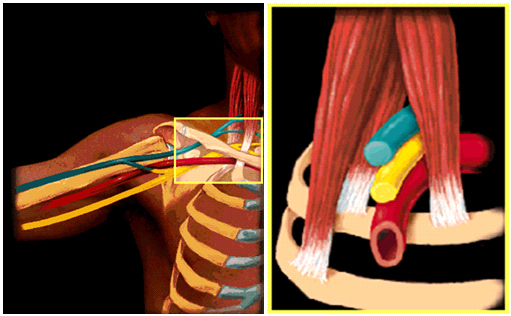 How To Truly Identify And Treat Thoracic Outlet Syndrome (TOS)