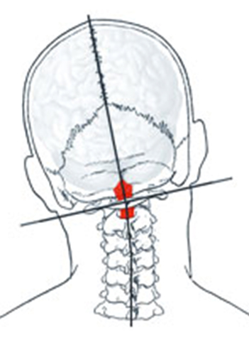 Atlas Joint Instability Causes Consequences And Solutions