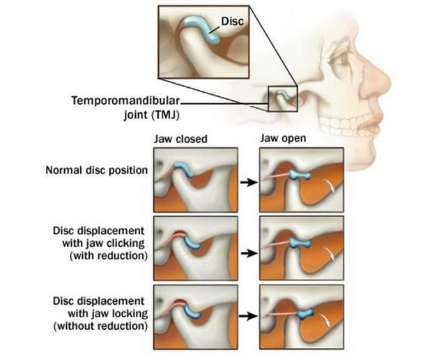 The True Cause And Solution For Temporomandibular Dysfunction Tmd