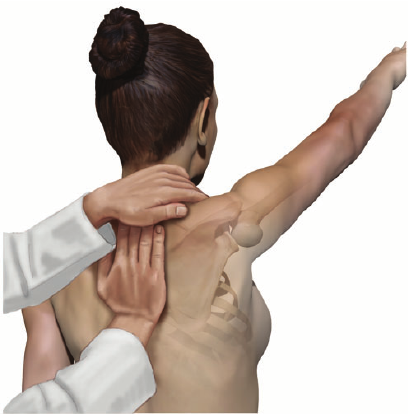 How To Properly Permanently Resolve Scapular Dyskinesis