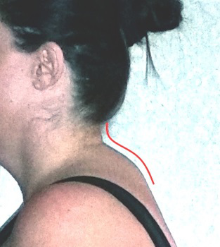 neck hump for blog - The association between tinnitus, the neck and TMJ