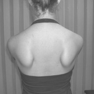How To Properly & Permanently Resolve Scapular Dyskinesis